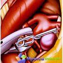 Tratamentul chirurgical al anevrisme
