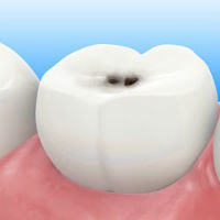 Deep caries: symptoms, characteristics and causes