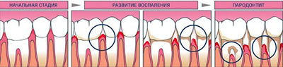 5 of 6 we lose teeth from caries does not!
