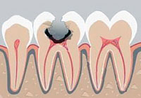 The etiology and pathogenesis of dental caries: a key to understanding