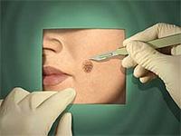 A mole or a melanoma?