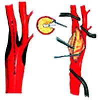 La endarterectomía carotídea