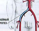 aortic femoral bypass