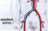 Aorto-dijbeen bypass