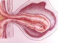 hernia in questions and answers