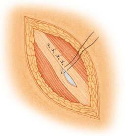 9 equívocos sobre o tratamento de hérnias