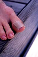behandeling van ingegroeide nagel