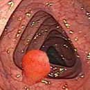 colon polyps causes and symptoms