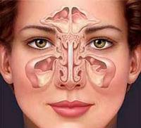 How to treat sinusitis