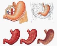 nieżyt żołądka i jelit