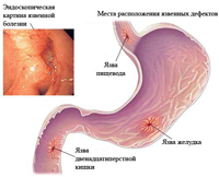 Treatment of peptic ulcer