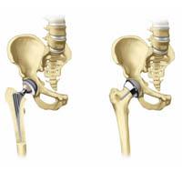 Driften av protesekirurgi
