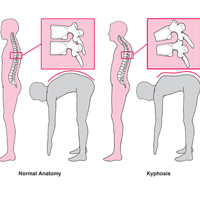 the main symptoms and treatment options kyphosis