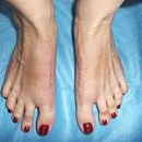 flat feet diagnosis treatment and prevention