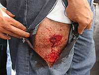 Primeiros socorros para feridos