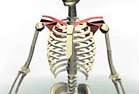 fractura de costilla