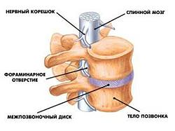 le traitement de l'ostéochondrose