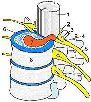 hernia de cartílago intervertebral lo que es