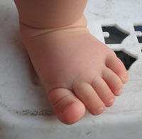 Wearing a healthy baby whether orthopedic shoes?