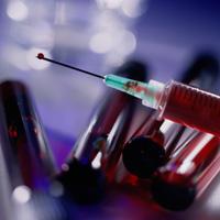 Die Diagnose der Immunschwäche in Verletzung des T-Systems der Immunität