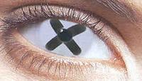 cómo y por qué el desarrollo de la degeneración macular