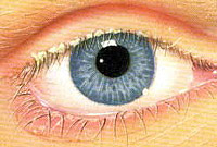 manifestation and treatment of blepharitis