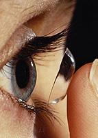 Methods of treatment of hyperopia