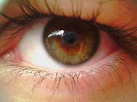 Око умора синдром (астхенопиа)