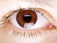 катаракта узроци и манифестација