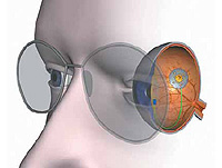Årsaker til hypermetropi
