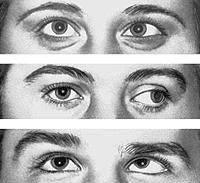 Arten von Schielen