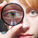 como tratar o olho