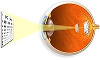 barn astigmatisme
