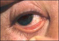 diphtheria conjunctivitis