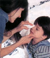 Zapalenie spojówek u dzieci