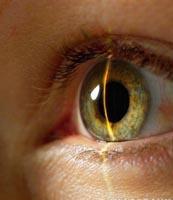 Poeng off! Laser synskorreksjon