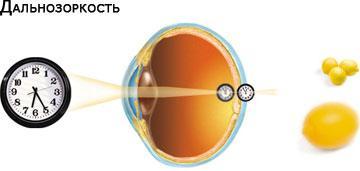 Dlaczego nasz wzrok pogarsza się, a co z tym zrobić?
