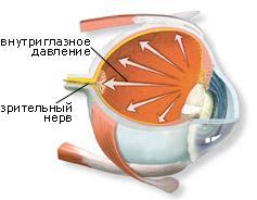 Cataractes. Y at-il une vie après la cataracte?