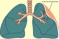 pulmonary atelectasis causes symptoms treatments