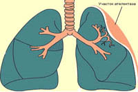 Pulmonary atelectasis: causes, symptoms, treatment