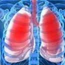 a bit of adult respiratory distress syndrome