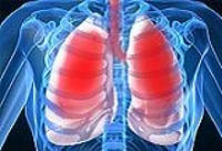 en bit av adult respiratory distress syndrome
