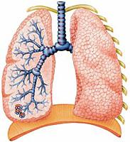 ropień płuca: objawy i leczenie