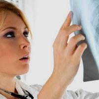 pulmonary fibrosis when needed transplantation