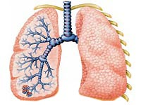 Bronchiectasis: causes and symptoms