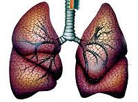 behandelingen voor sarcoidosis