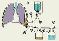Методе лечења Плеуриси