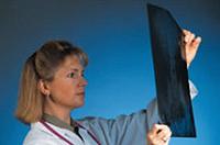 Neumonía: Signos y Tratamiento