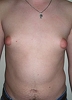 métodos de correção de ginecomastia