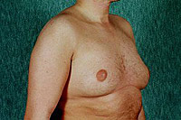 to remove gynecomastia surgery